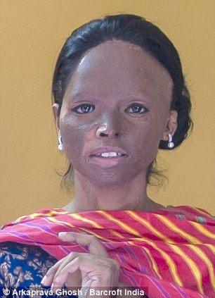 Laxmi: Founder, 'Stop Acid Attacks': Image courtesy: Laxmi's FB Group